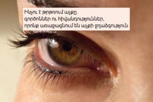 Ինչու է թրթռում աչքը. գործոններ ու հիվանդություններ, որոնք առաջացնում են աչքի ջղաձգություն
